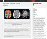 OpenStax Psychology, Biopsychology, Introduction